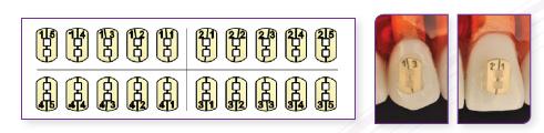 01-Ortocervera-post-Instrucciones-del-uso-del-Bracket-Camaleon-03