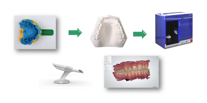 modelos-digitales-alineadores