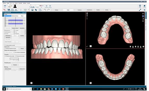 setup-digital-alineadores-ortodoncia